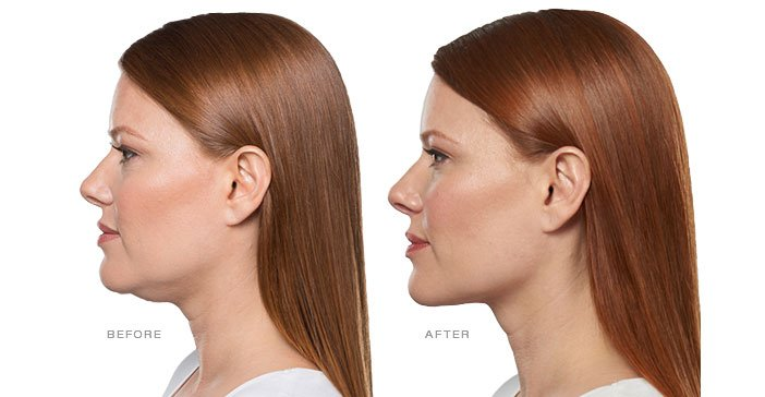 Learn More about Kybella
