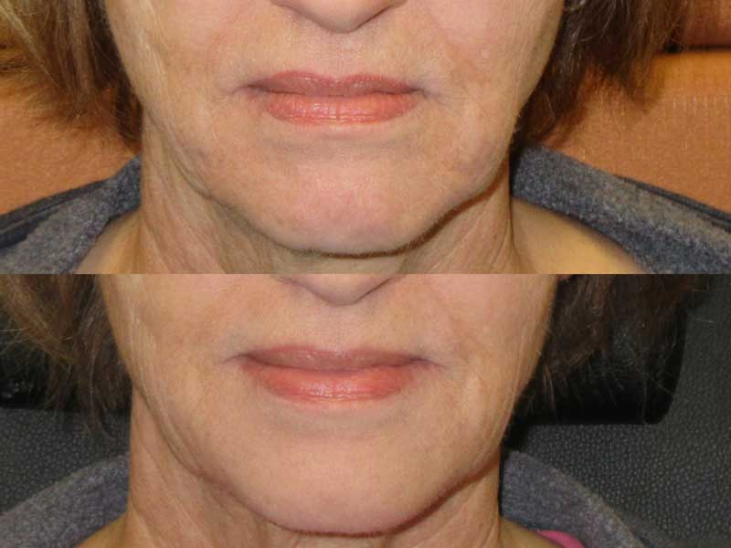 Fillers for Face and Hands – The Medi Spa at Ridgewood Hill
